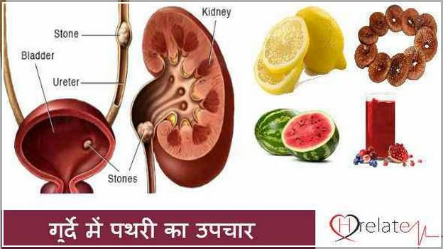 Kidney Stone Pain Relief In Hindi