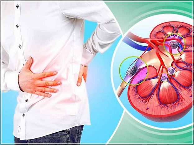 Kidney Stone Pain Relief Instant