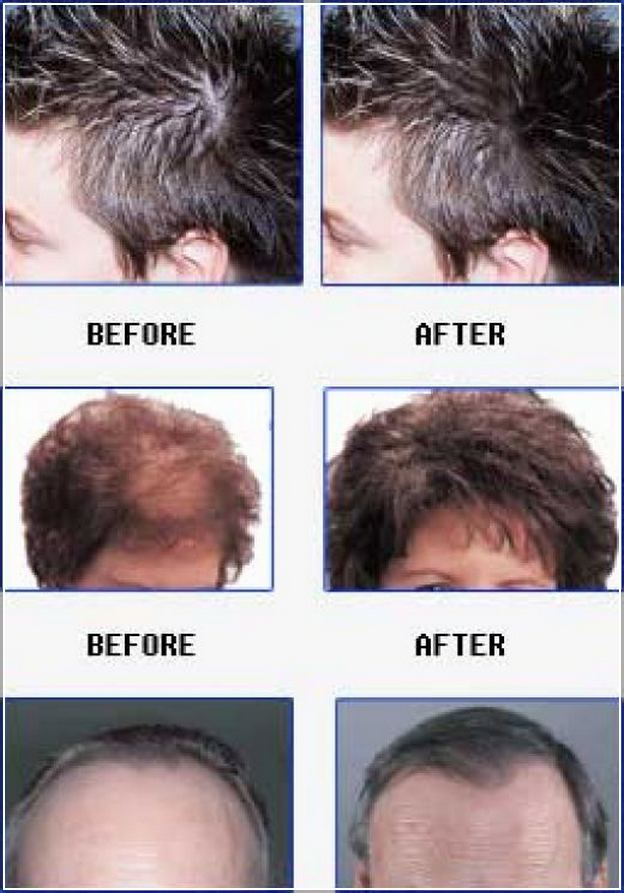 Thyroid Hair Loss Male