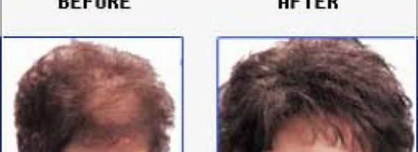 Thyroid Hair Loss Pictures