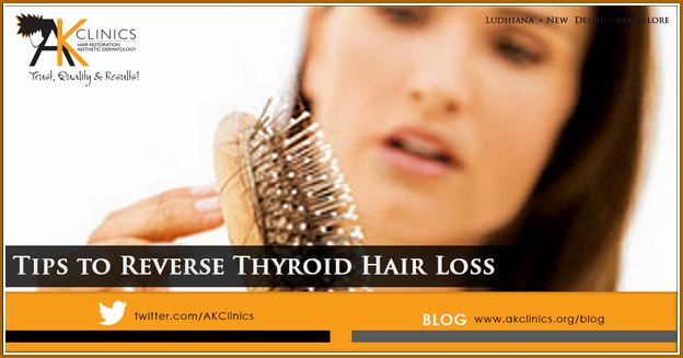 Thyroid Hair Loss Regrowth