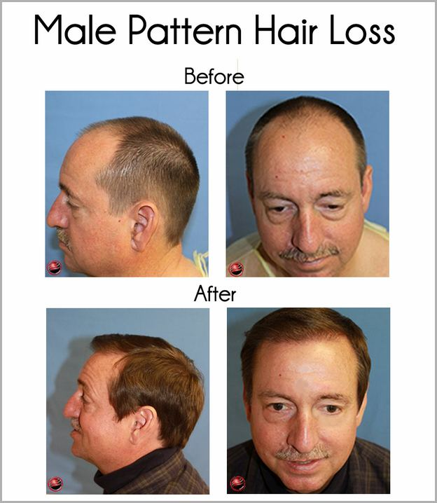 Thyroid Hair Loss Vs Male Pattern Baldness